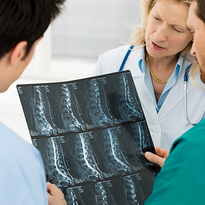 Degenerative disc disease and SSDI