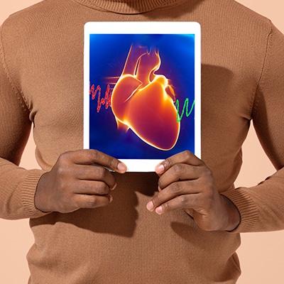 Heart Disease and SSDI